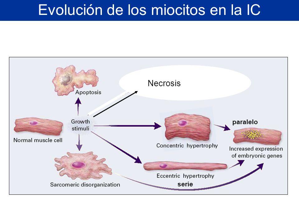 Evolución de los miocitos en la IC paralelo serie Necrosis