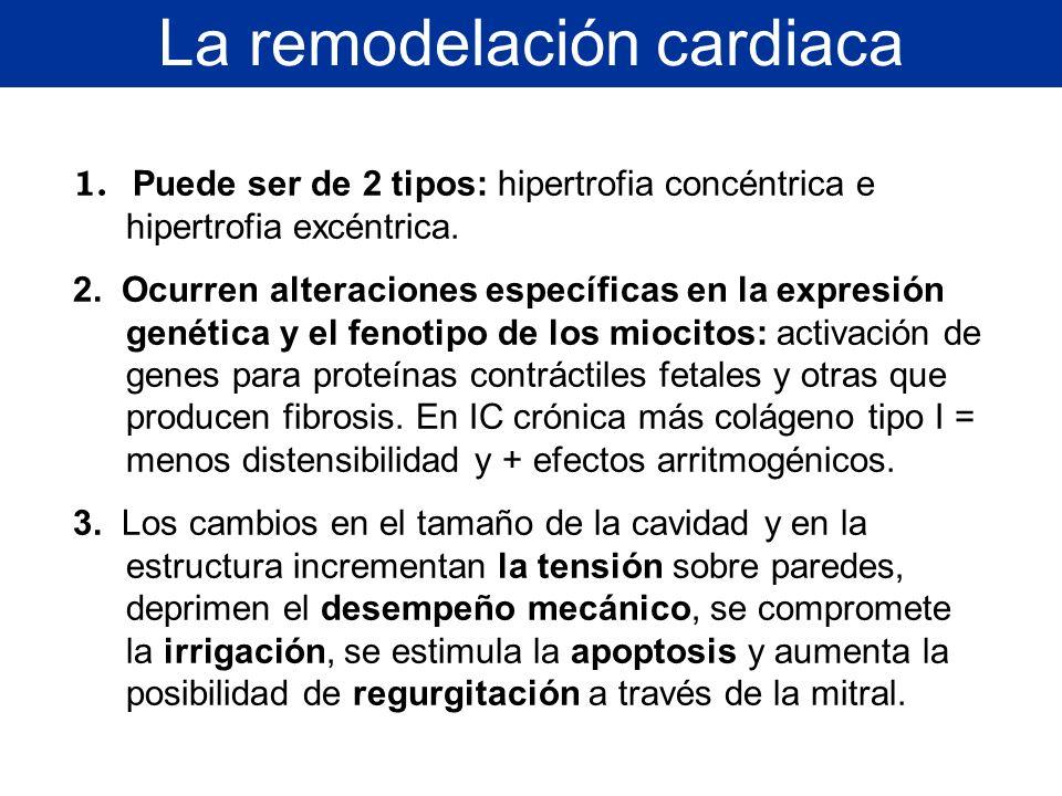 La remodelación cardiaca 1. Puede ser de 2 tipos: hipertrofia concéntrica e hipertrofia excéntrica. 2. Ocurren alteraciones específicas en la expresió