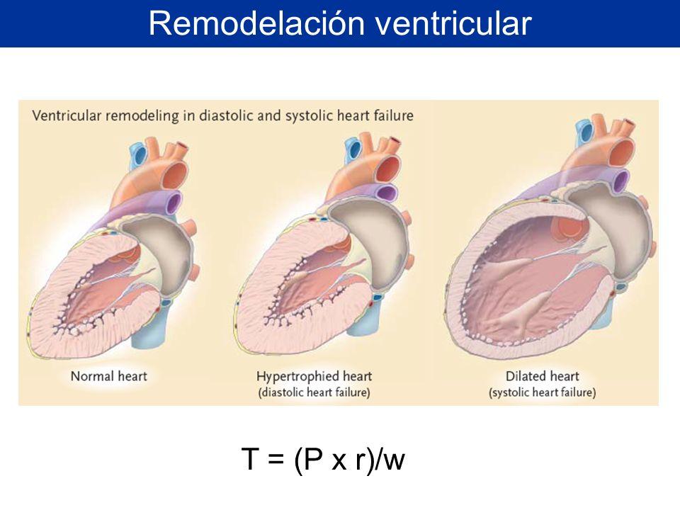 Remodelación ventricular T = (P x r)/w