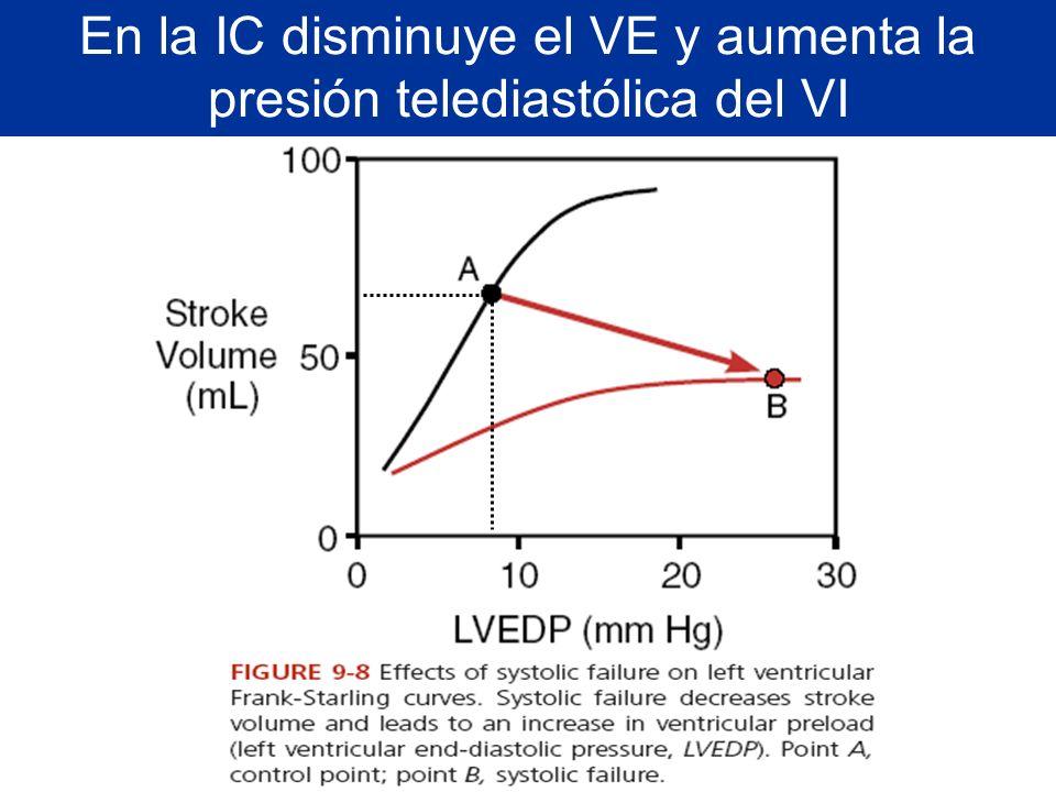 En la IC disminuye el VE y aumenta la presión telediastólica del VI