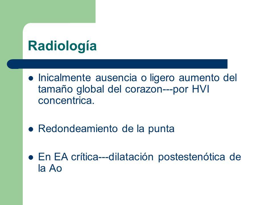 Radiología Inicalmente ausencia o ligero aumento del tamaño global del corazon---por HVI concentrica. Redondeamiento de la punta En EA crítica---dilat