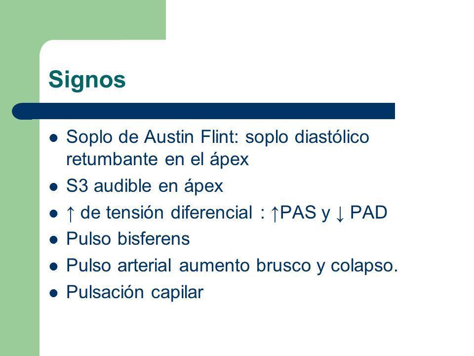 Signos Soplo de Austin Flint: soplo diastólico retumbante en el ápex S3 audible en ápex de tensión diferencial : PAS y PAD Pulso bisferens Pulso arter