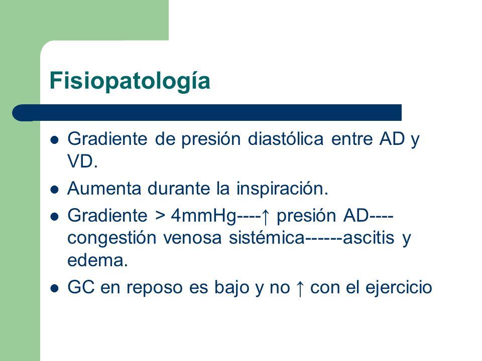 Fisiopatología Gradiente de presión diastólica entre AD y VD. Aumenta durante la inspiración. Gradiente > 4mmHg---- presión AD---- congestión venosa s
