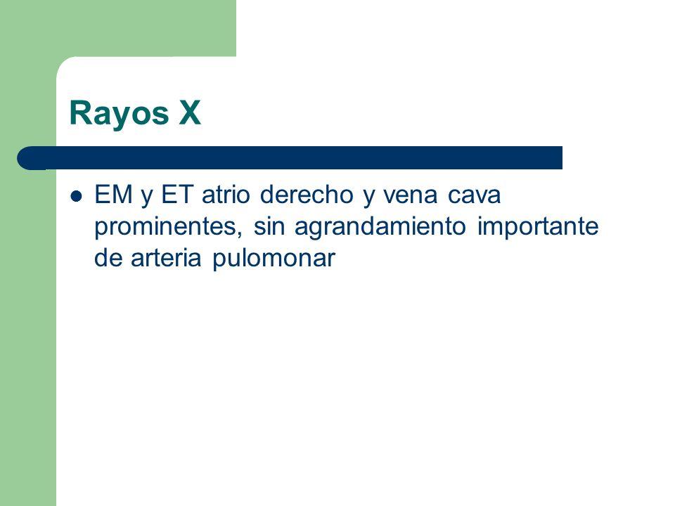 Rayos X EM y ET atrio derecho y vena cava prominentes, sin agrandamiento importante de arteria pulomonar