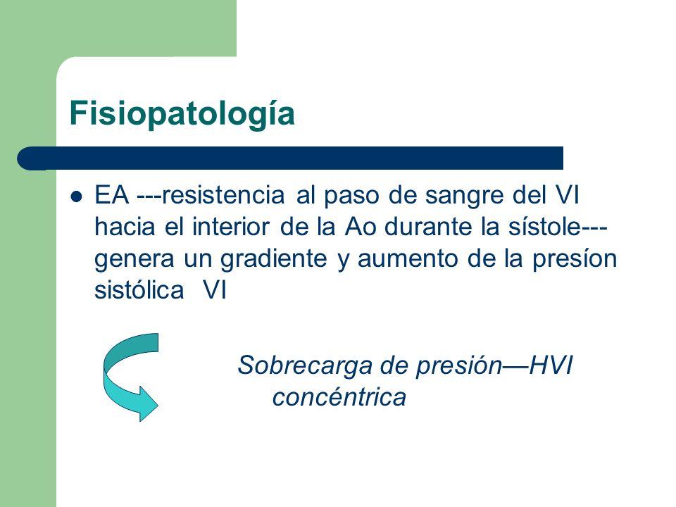 Fisiopatología EA ---resistencia al paso de sangre del VI hacia el interior de la Ao durante la sístole--- genera un gradiente y aumento de la presíon