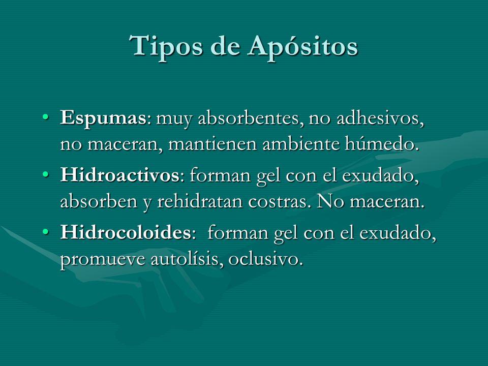 Tipos de Apósitos Espumas: muy absorbentes, no adhesivos, no maceran, mantienen ambiente húmedo.Espumas: muy absorbentes, no adhesivos, no maceran, ma