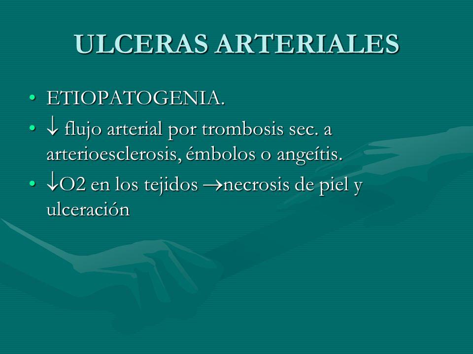ULCERAS ARTERIALES ETIOPATOGENIA.ETIOPATOGENIA. flujo arterial por trombosis sec. a arterioesclerosis, émbolos o angeítis. flujo arterial por trombosi