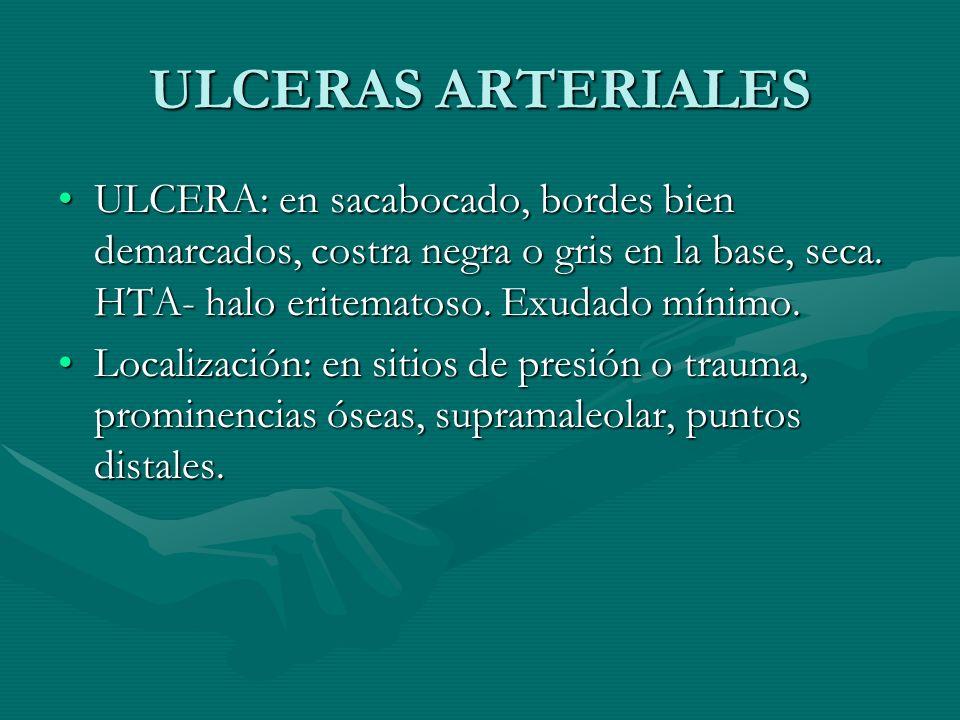 ULCERAS ARTERIALES ULCERA: en sacabocado, bordes bien demarcados, costra negra o gris en la base, seca. HTA- halo eritematoso. Exudado mínimo.ULCERA: