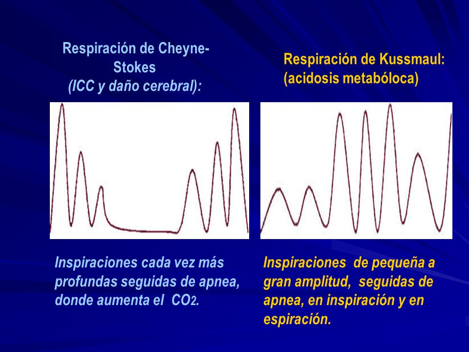 Disnea Respiración de Cheyne-Stokes: - Fases periódicas de î respiración apnea. - Se debe a la disminución de la sensibilidad de los centros respirato