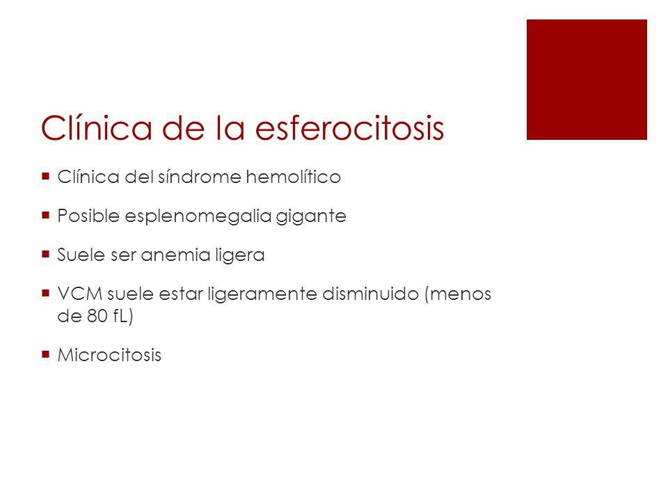 Clínica de la esferocitosis Clínica del síndrome hemolítico Posible esplenomegalia gigante Suele ser anemia ligera VCM suele estar ligeramente disminu