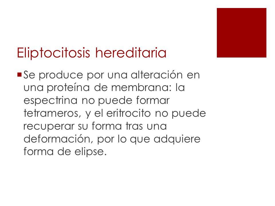Eliptocitosis hereditaria Se produce por una alteración en una proteína de membrana: la espectrina no puede formar tetrameros, y el eritrocito no pued