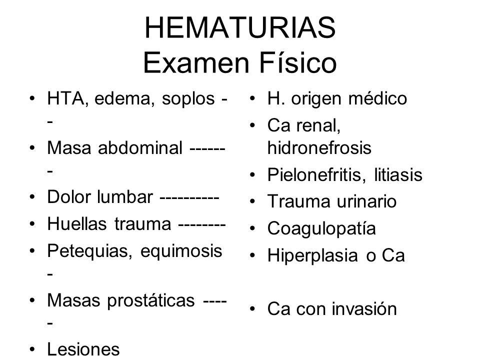 HEMATURIAS Examen Físico HTA, edema, soplos - - Masa abdominal ------ - Dolor lumbar ---------- Huellas trauma -------- Petequias, equimosis - Masas p