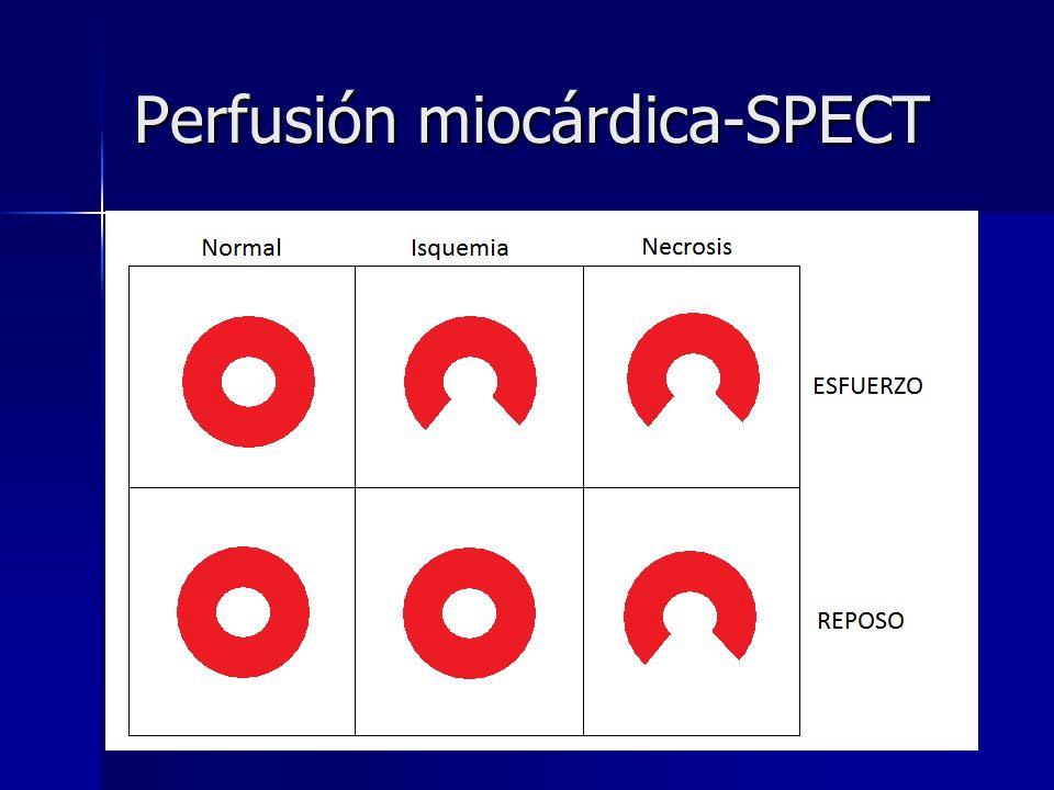 Perfusión miocárdica-SPECT l