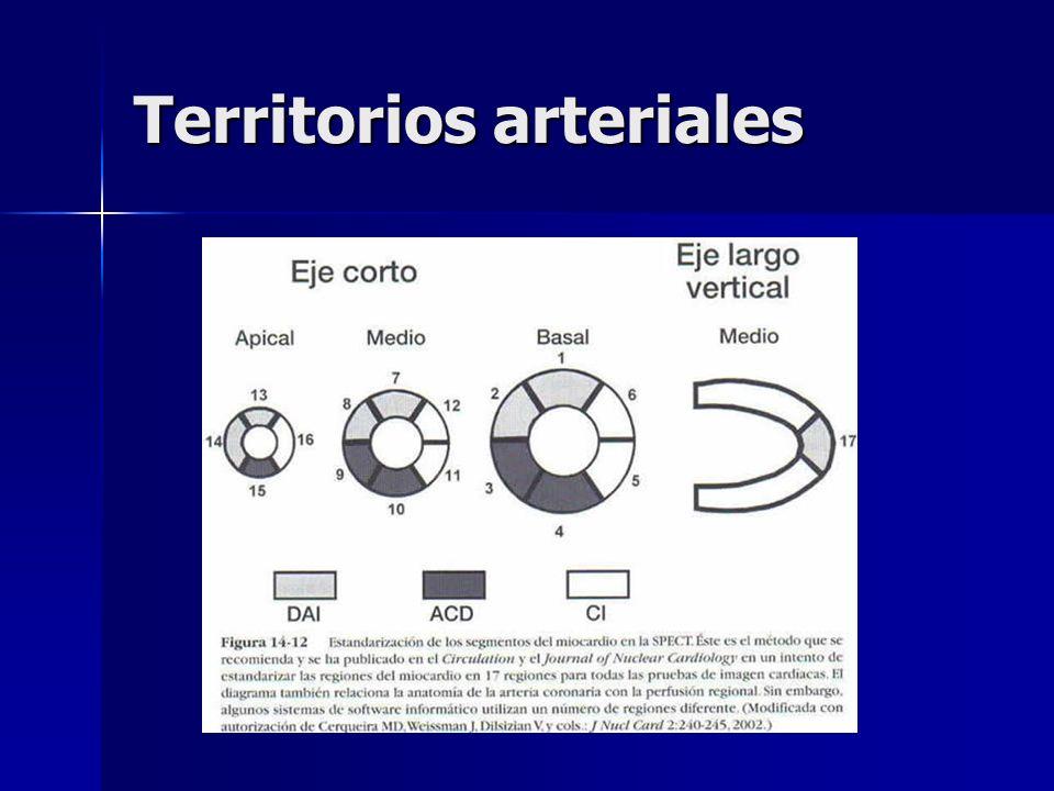 Territorios arteriales