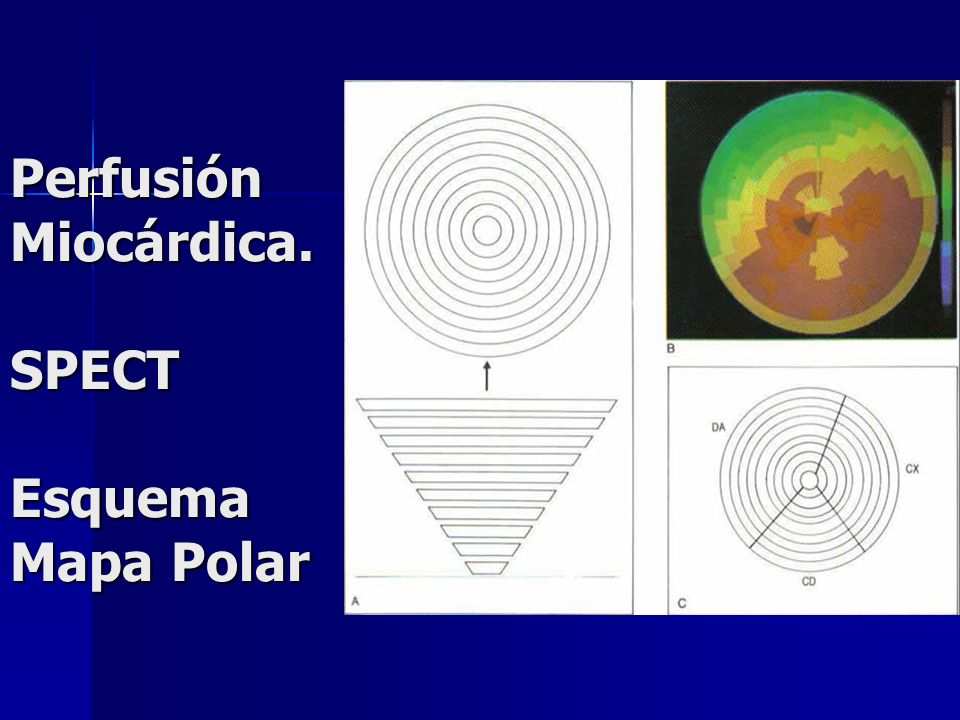 Perfusión Miocárdica. SPECT Esquema Mapa Polar