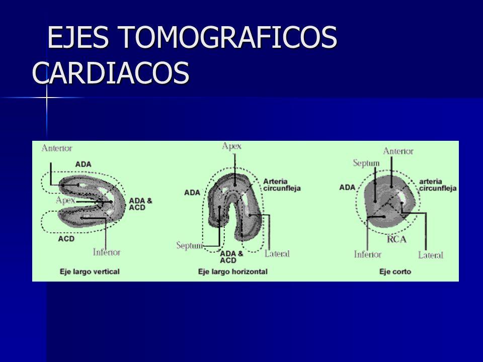 EJES TOMOGRAFICOS CARDIACOS EJES TOMOGRAFICOS CARDIACOS