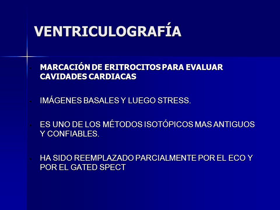 VENTRICULOGRAFÍA VENTRICULOGRAFÍA MARCACIÓN DE ERITROCITOS PARA EVALUAR CAVIDADES CARDIACAS MARCACIÓN DE ERITROCITOS PARA EVALUAR CAVIDADES CARDIACAS