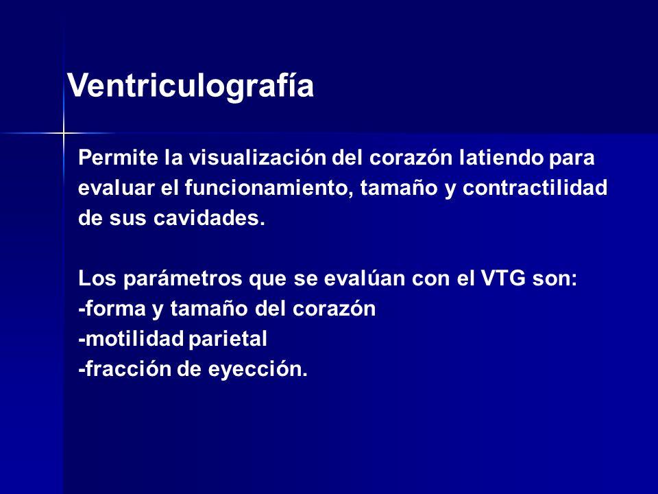 Ventriculografía Permite la visualización del corazón latiendo para evaluar el funcionamiento, tamaño y contractilidad de sus cavidades. Los parámetro