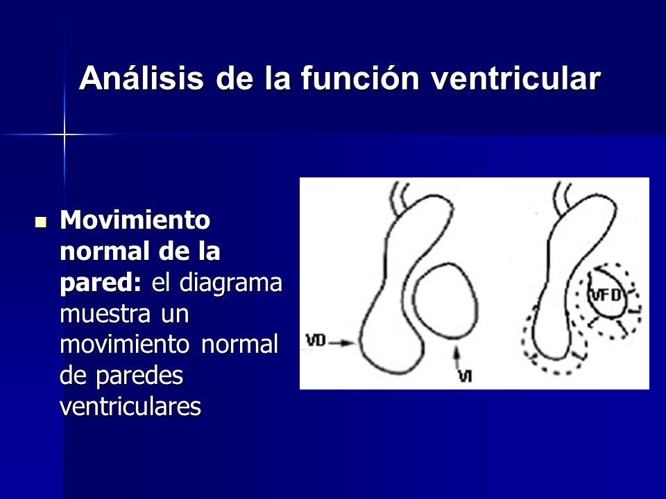 Análisis de la función ventricular Movimiento normal de la pared: el diagrama muestra un movimiento normal de paredes ventriculares Movimiento normal