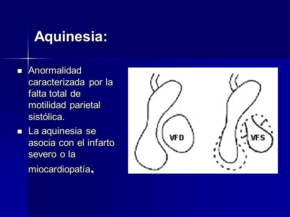 Aquinesia: Anormalidad caracterizada por la falta total de motilidad parietal sistólica. Anormalidad caracterizada por la falta total de motilidad par