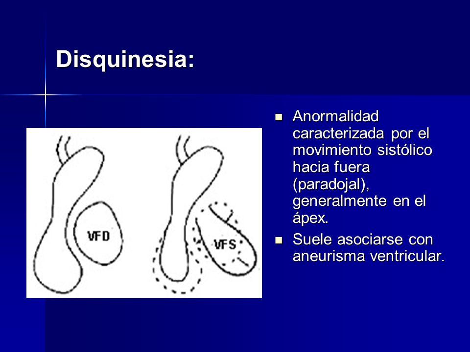 Disquinesia: Anormalidad caracterizada por el movimiento sistólico hacia fuera (paradojal), generalmente en el ápex. Anormalidad caracterizada por el