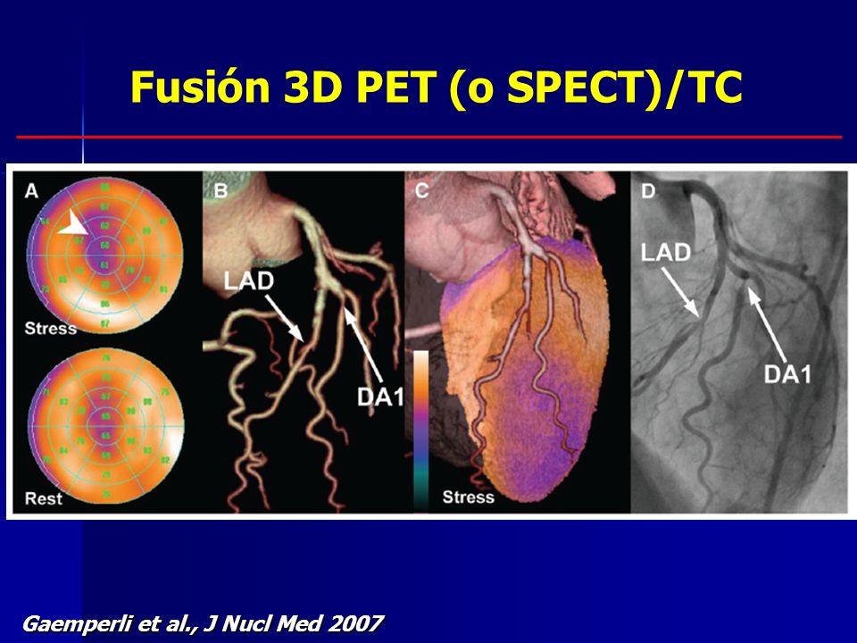 Gaemperli et al., J Nucl Med 2007 Fusión 3D PET (o SPECT)/TC