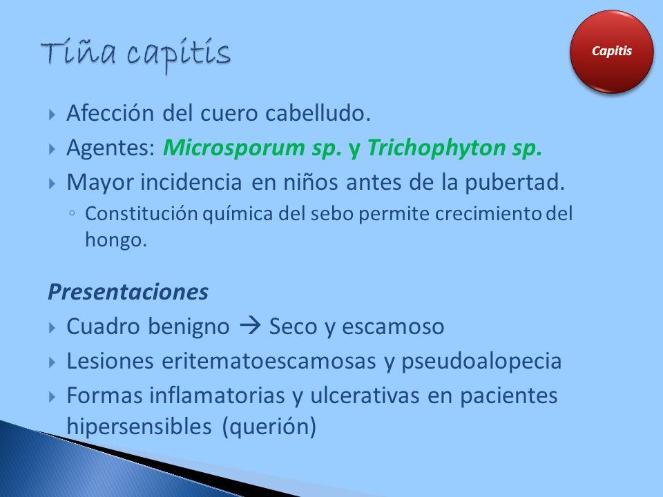 Afección del cuero cabelludo. Agentes: Microsporum sp. y Trichophyton sp. Mayor incidencia en niños antes de la pubertad. Constitución química del seb