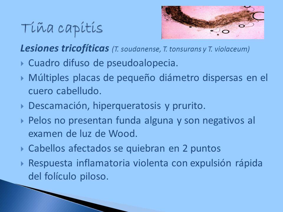 Lesiones tricofíticas (T. soudanense, T. tonsurans y T. violaceum) Cuadro difuso de pseudoalopecia. Múltiples placas de pequeño diámetro dispersas en