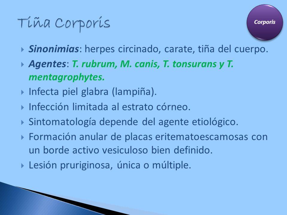 Sinonimias: herpes circinado, carate, tiña del cuerpo. Agentes: T. rubrum, M. canis, T. tonsurans y T. mentagrophytes. Infecta piel glabra (lampiña).