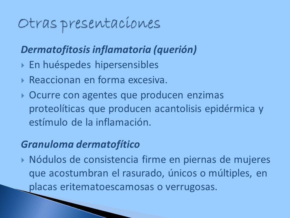 Dermatofitosis inflamatoria (querión) En huéspedes hipersensibles Reaccionan en forma excesiva. Ocurre con agentes que producen enzimas proteolíticas