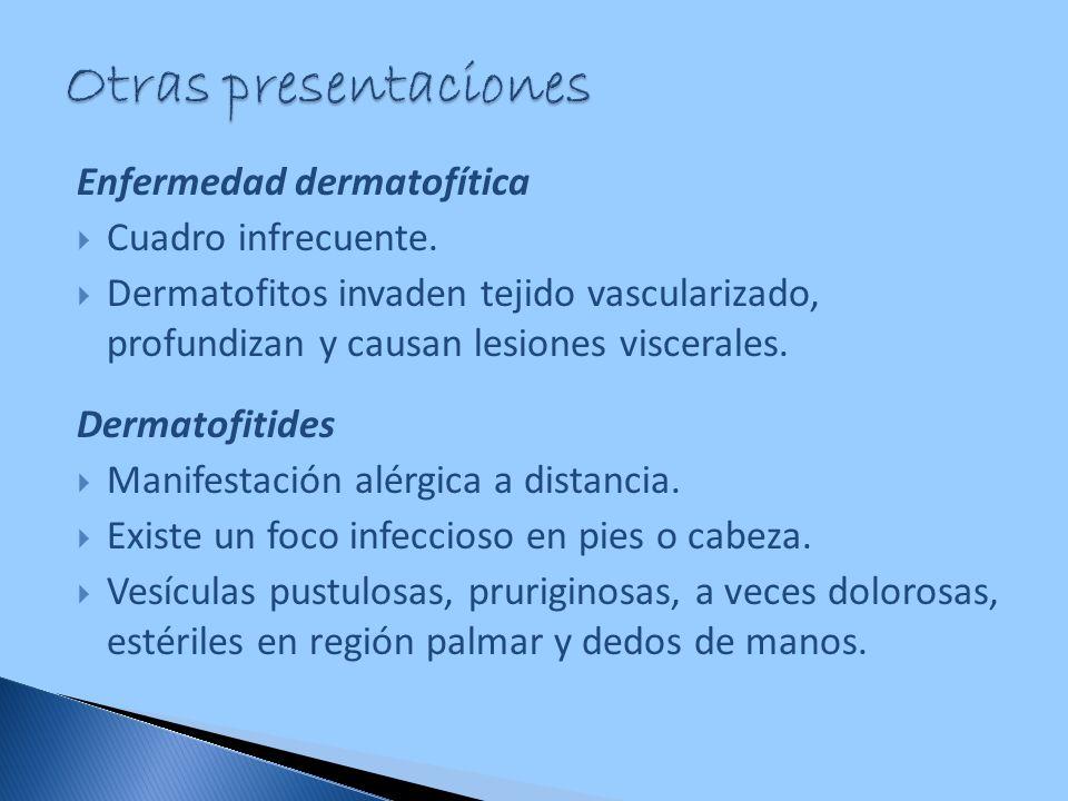 Enfermedad dermatofítica Cuadro infrecuente. Dermatofitos invaden tejido vascularizado, profundizan y causan lesiones viscerales. Dermatofitides Manif