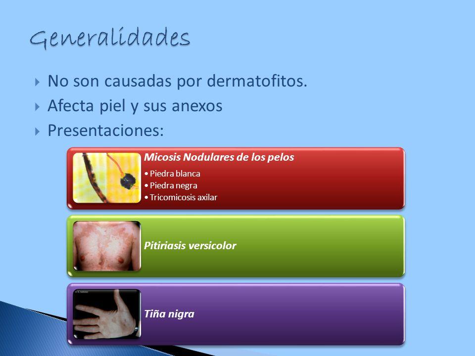 No son causadas por dermatofitos. Afecta piel y sus anexos Presentaciones: Micosis Nodulares de los pelos Piedra blanca Piedra negra Tricomicosis axil