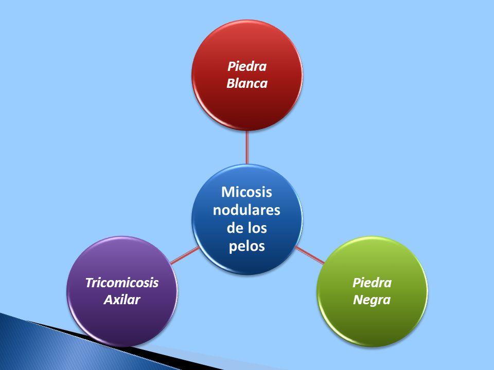 Micosis nodulares de los pelos Piedra Blanca Piedra Negra Tricomicosis Axilar