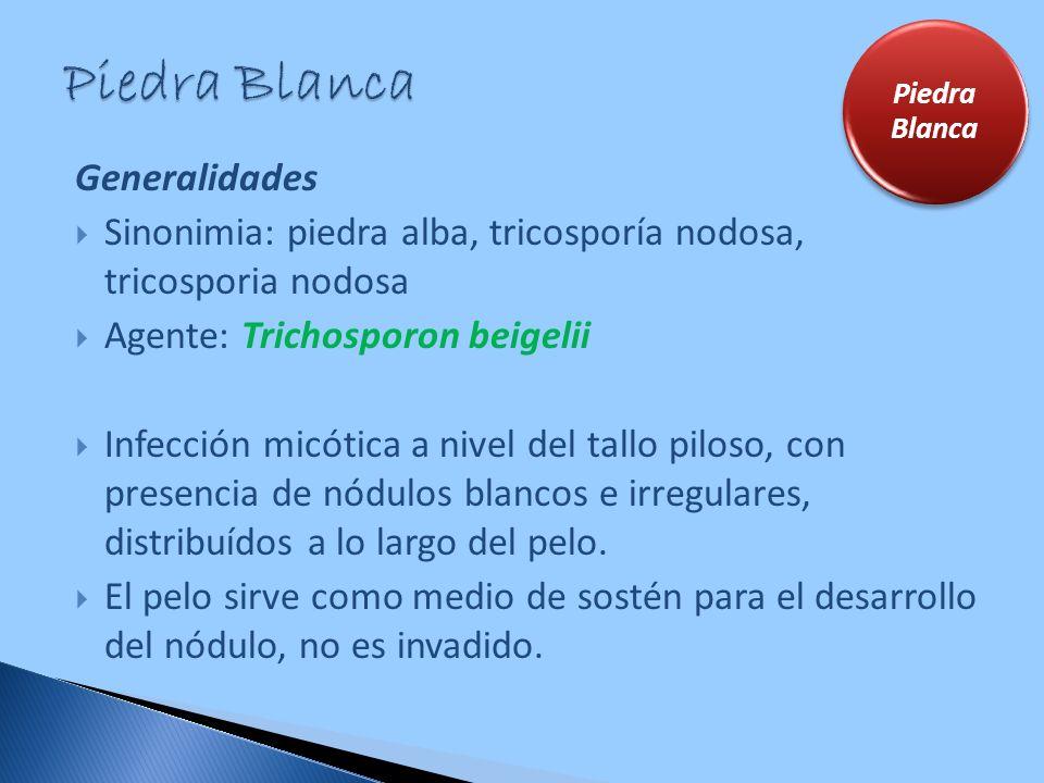 Generalidades Sinonimia: piedra alba, tricosporía nodosa, tricosporia nodosa Agente: Trichosporon beigelii Infección micótica a nivel del tallo piloso
