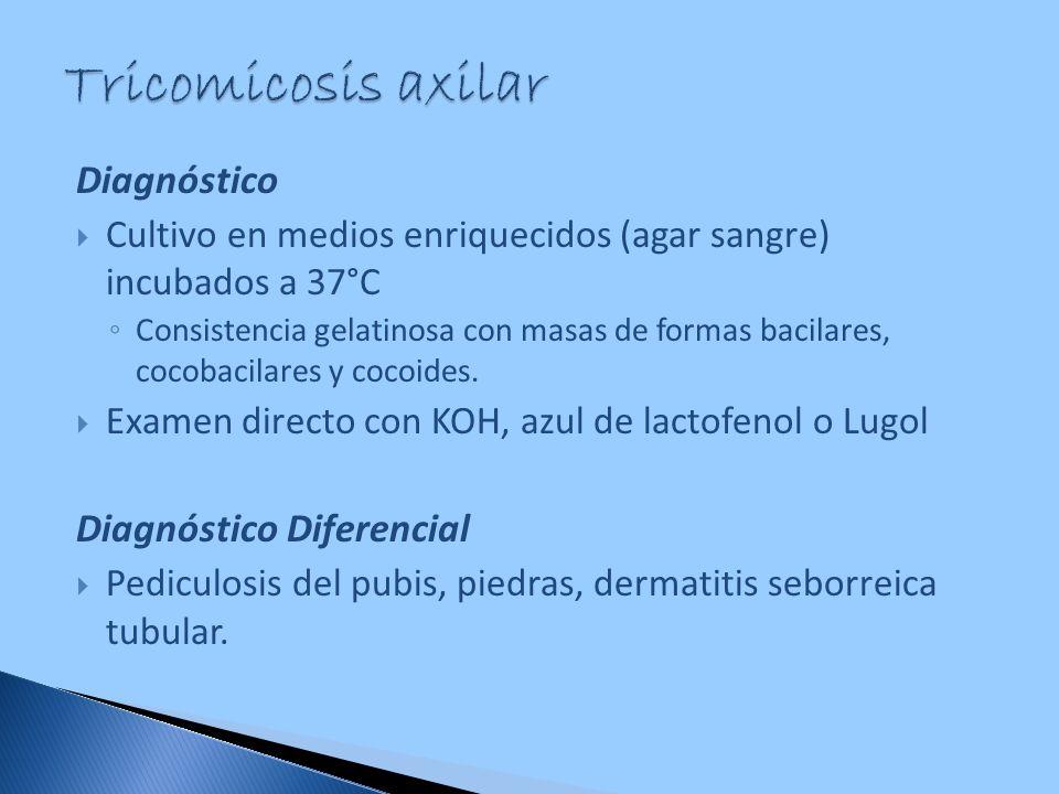 Diagnóstico Cultivo en medios enriquecidos (agar sangre) incubados a 37°C Consistencia gelatinosa con masas de formas bacilares, cocobacilares y cocoi