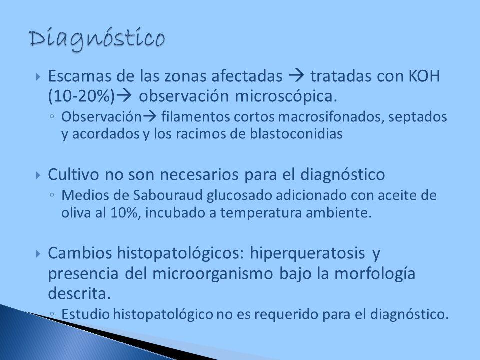 Escamas de las zonas afectadas tratadas con KOH (10-20%) observación microscópica. Observación filamentos cortos macrosifonados, septados y acordados