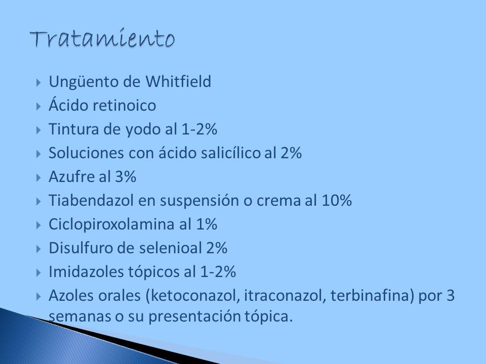 Ungüento de Whitfield Ácido retinoico Tintura de yodo al 1-2% Soluciones con ácido salicílico al 2% Azufre al 3% Tiabendazol en suspensión o crema al