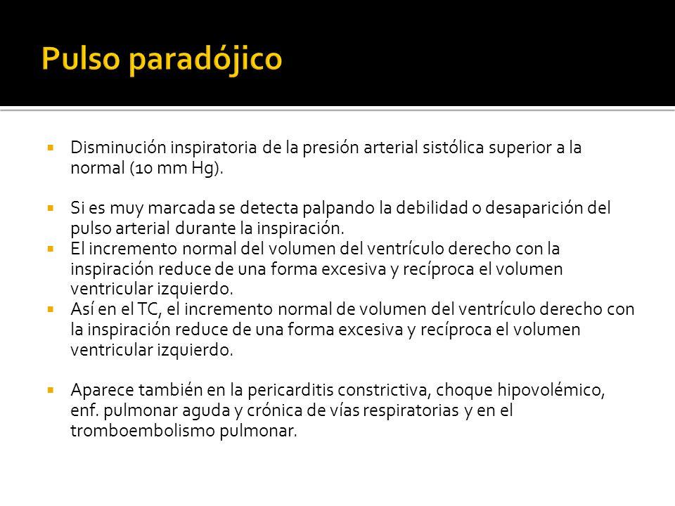 Disminución inspiratoria de la presión arterial sistólica superior a la normal (10 mm Hg).