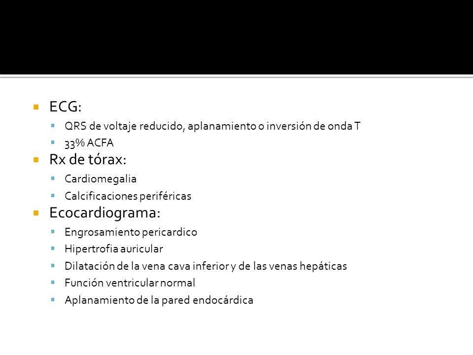 ECG: QRS de voltaje reducido, aplanamiento o inversión de onda T 33% ACFA Rx de tórax: Cardiomegalia Calcificaciones periféricas Ecocardiograma: Engro
