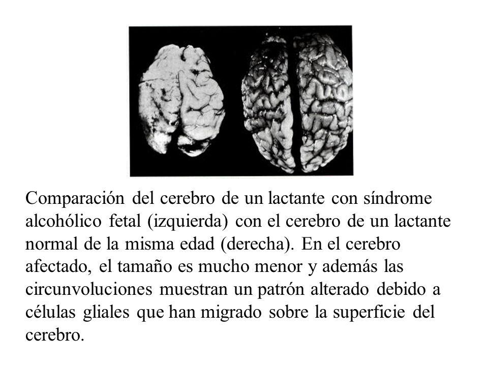 Comparación del cerebro de un lactante con síndrome alcohólico fetal (izquierda) con el cerebro de un lactante normal de la misma edad (derecha). En e