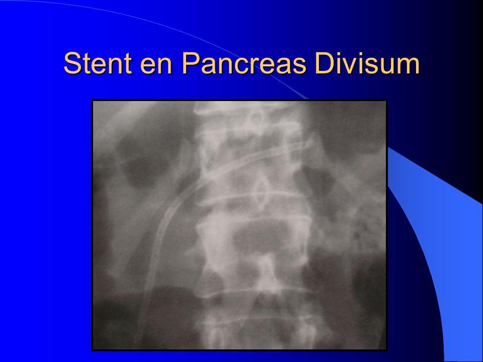 Stent en Pancreas Divisum