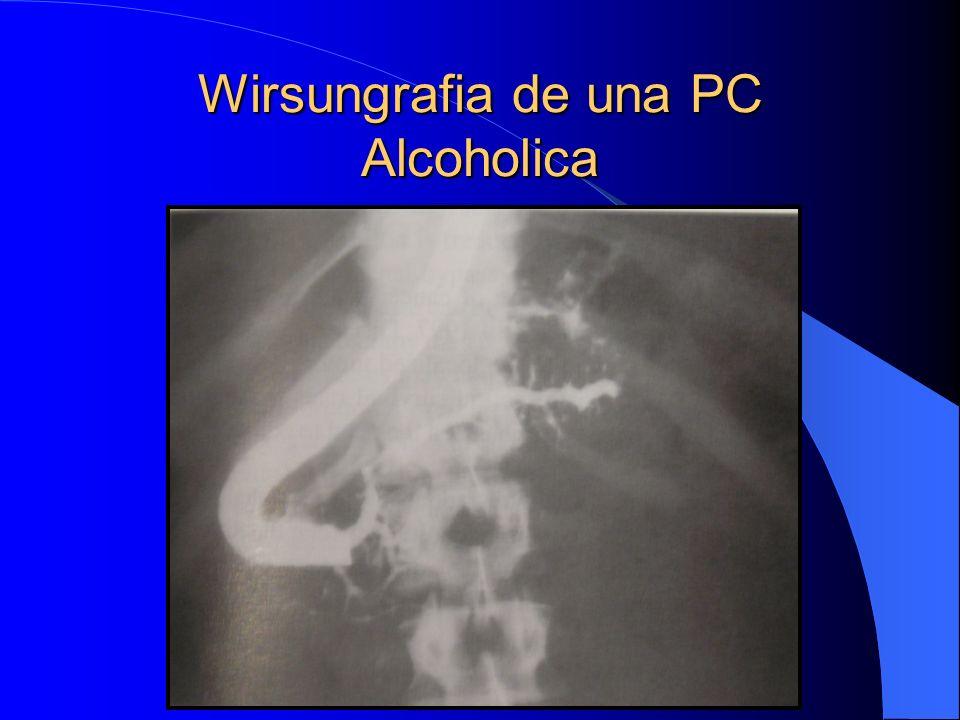 Wirsungrafia de una PC Alcoholica