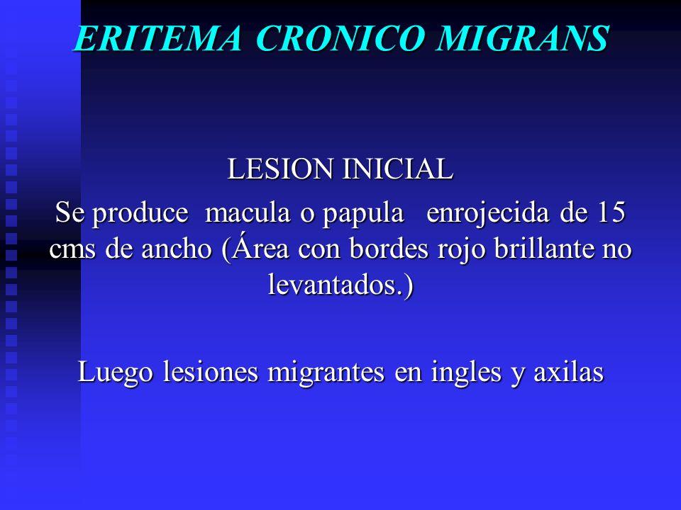 ERITEMA CRONICO MIGRANS LESION INICIAL Se produce macula o papula enrojecida de 15 cms de ancho (Área con bordes rojo brillante no levantados.) Luego