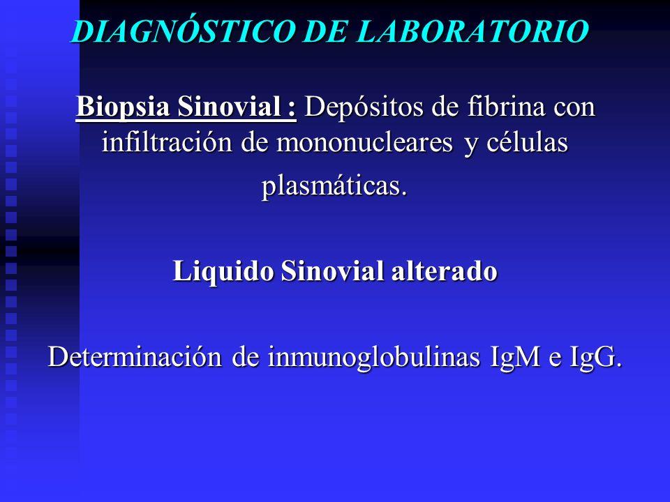DIAGNÓSTICO DE LABORATORIO Biopsia Sinovial : Depósitos de fibrina con infiltración de mononucleares y células plasmáticas. Liquido Sinovial alterado