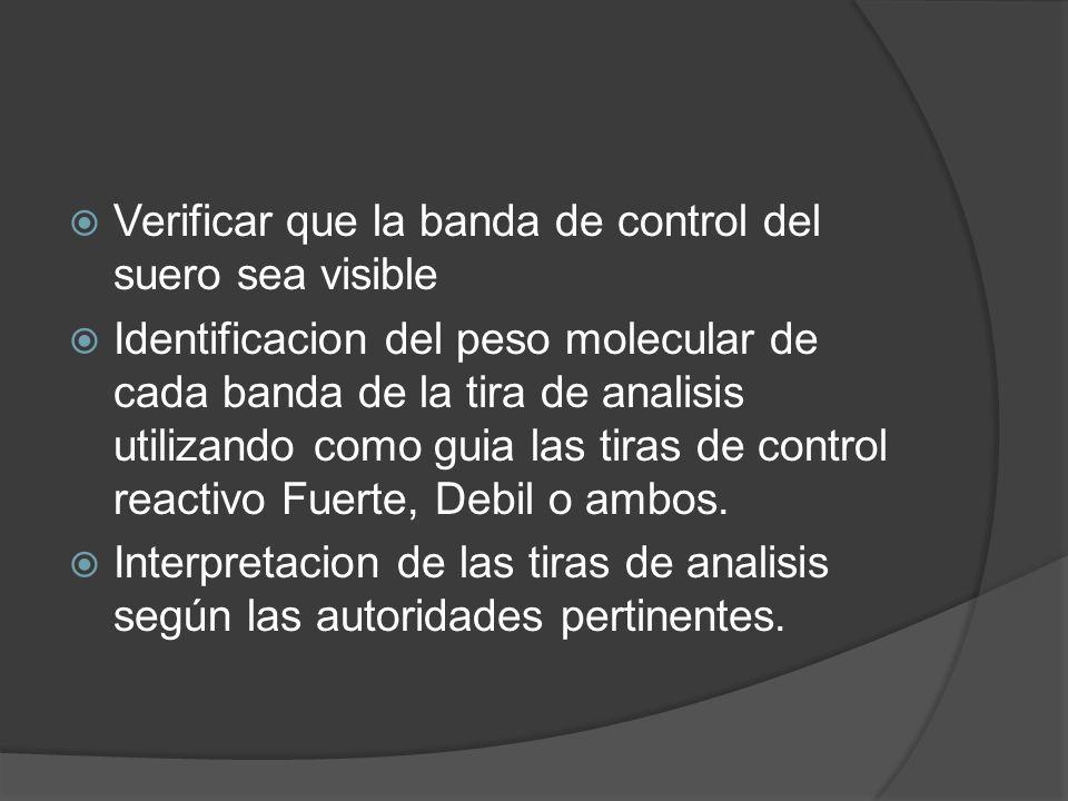 Verificar que la banda de control del suero sea visible Identificacion del peso molecular de cada banda de la tira de analisis utilizando como guia la