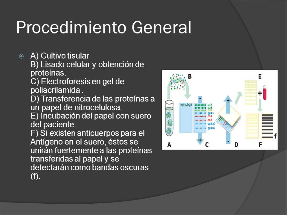 Procedimiento General A) Cultivo tisular B) Lisado celular y obtención de proteínas. C) Electroforesis en gel de poliacrilamida. D) Transferencia de l