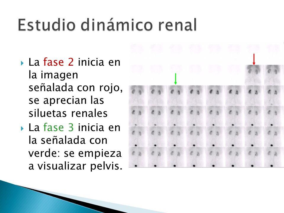 La fase 2 inicia en la imagen señalada con rojo, se aprecian las siluetas renales La fase 3 inicia en la señalada con verde: se empieza a visualizar pelvis.