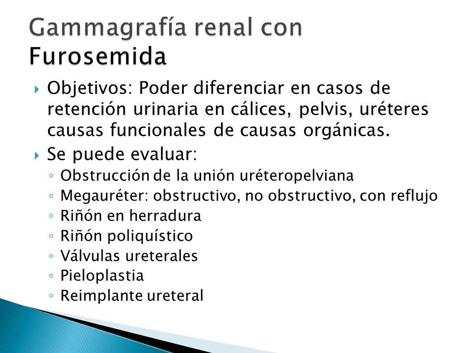 Objetivos: Poder diferenciar en casos de retención urinaria en cálices, pelvis, uréteres causas funcionales de causas orgánicas.