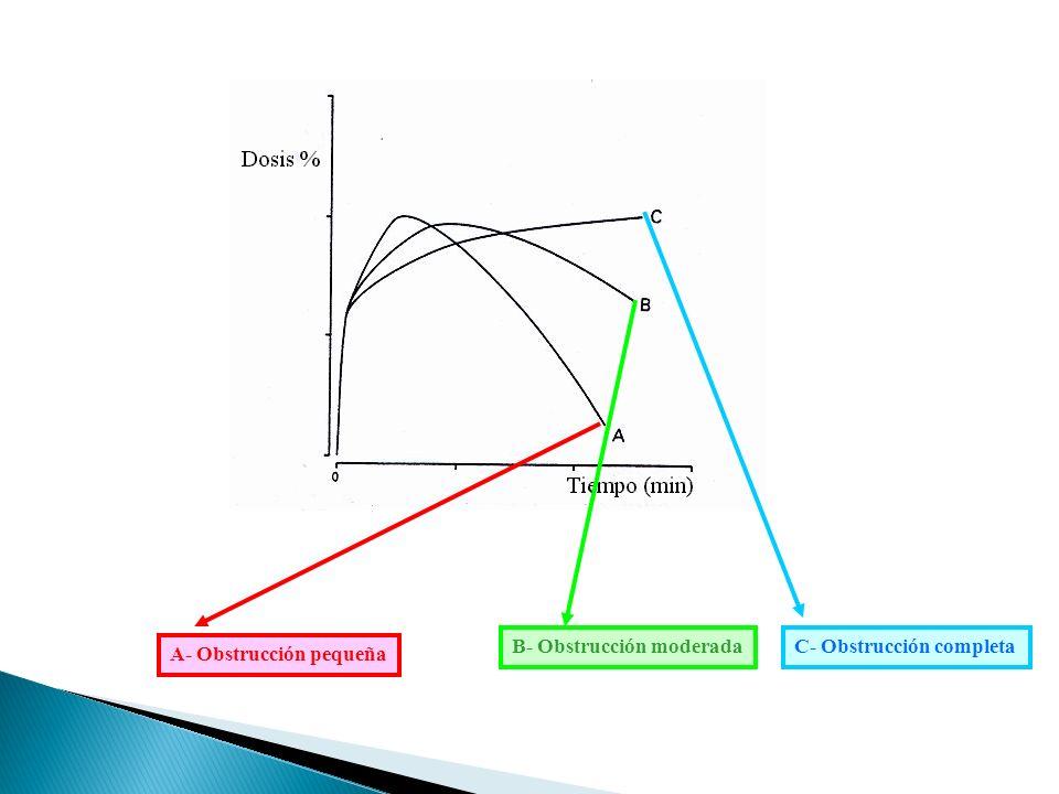 A- Obstrucción pequeña B- Obstrucción moderadaC- Obstrucción completa
