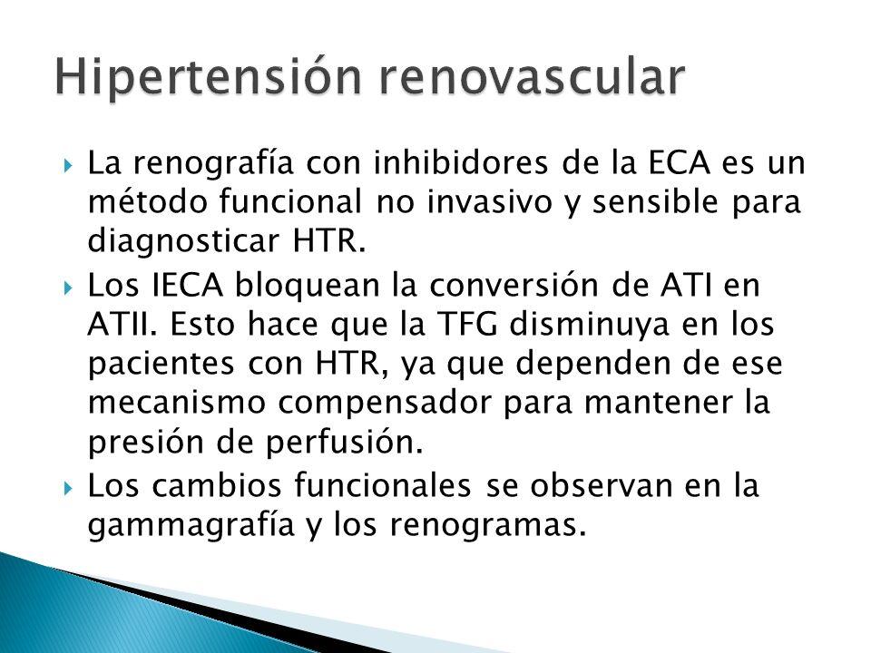 La renografía con inhibidores de la ECA es un método funcional no invasivo y sensible para diagnosticar HTR.